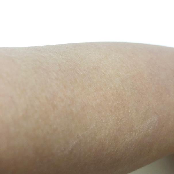 シルクエキスパートによるお手入れを4週間続けた後の二の腕の画像